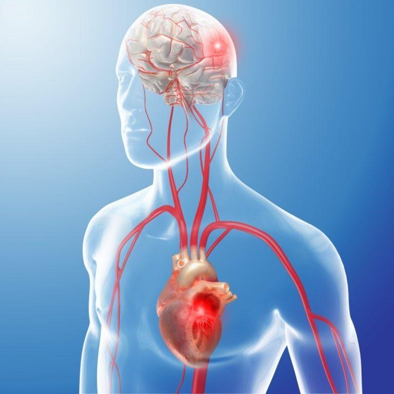 Voorkamerfibrillatie